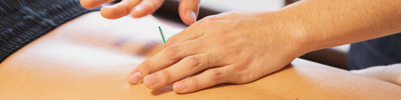 Dry needling to the low back